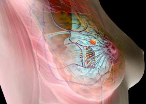 Женская грудь на КТ